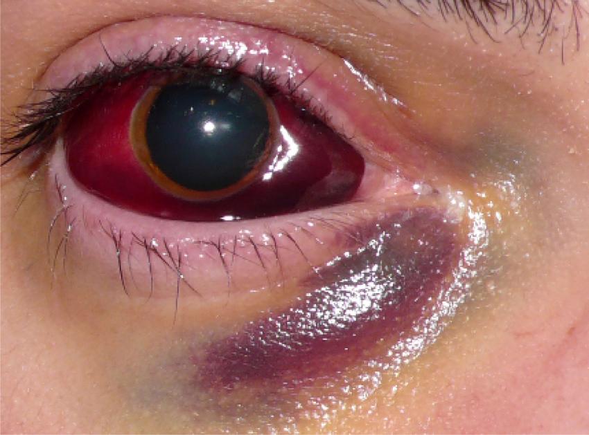 blødning i øjet