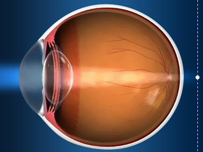 Langsynethed (hypermetropi) - Øjenleksikon
