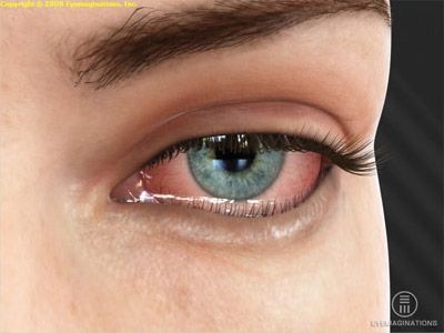 Indadrettet øjenlåg (entropion) - Øjenleksikon