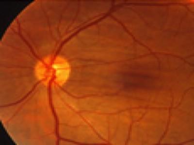 Epiretinal membran - Øjenleksikon