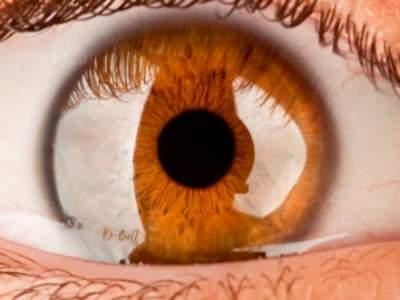 Alderssyn (presbyopi) - Øjenleksikon